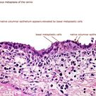Squamous metaplasia of the cervix