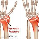 Barton's fracture & Smith's fracture
