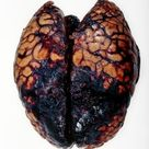 Brain hemorrhage, post-mortem. Sometimes you HAVE to see it to believe it.