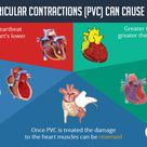 Premature Ventricular Contractions (PVC) and cardiomyopathy