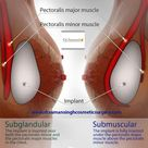 Cosmetic & Plastic Surgery for Breast Surgery