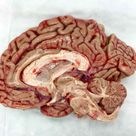 Mid Sagittal dissection of a human brain. Absolutely amazing!