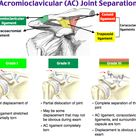 Acromioclavicular joint separation