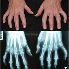 Erosive Osteoarthritis: Hands, showing Bouchard, Heberden nodes, sparing of MCP joints, central eros