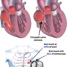 Tricuspid Stenosis Rosh Review
