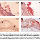 ADT Risks and Side Effects in Advanced Prostate Cancer: Cardiovascular and Acute Renal Injury
