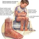 Typical symptoms and signs of Henoch Schonlein purpura