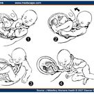 Nuchal Cords: the perfect scapegoat   MidwifeThinking