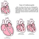 Cardiomyopathy types