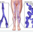 """The word """"varicose"""" comes from the Latin root """"varix,"""" which means """"twisted"""