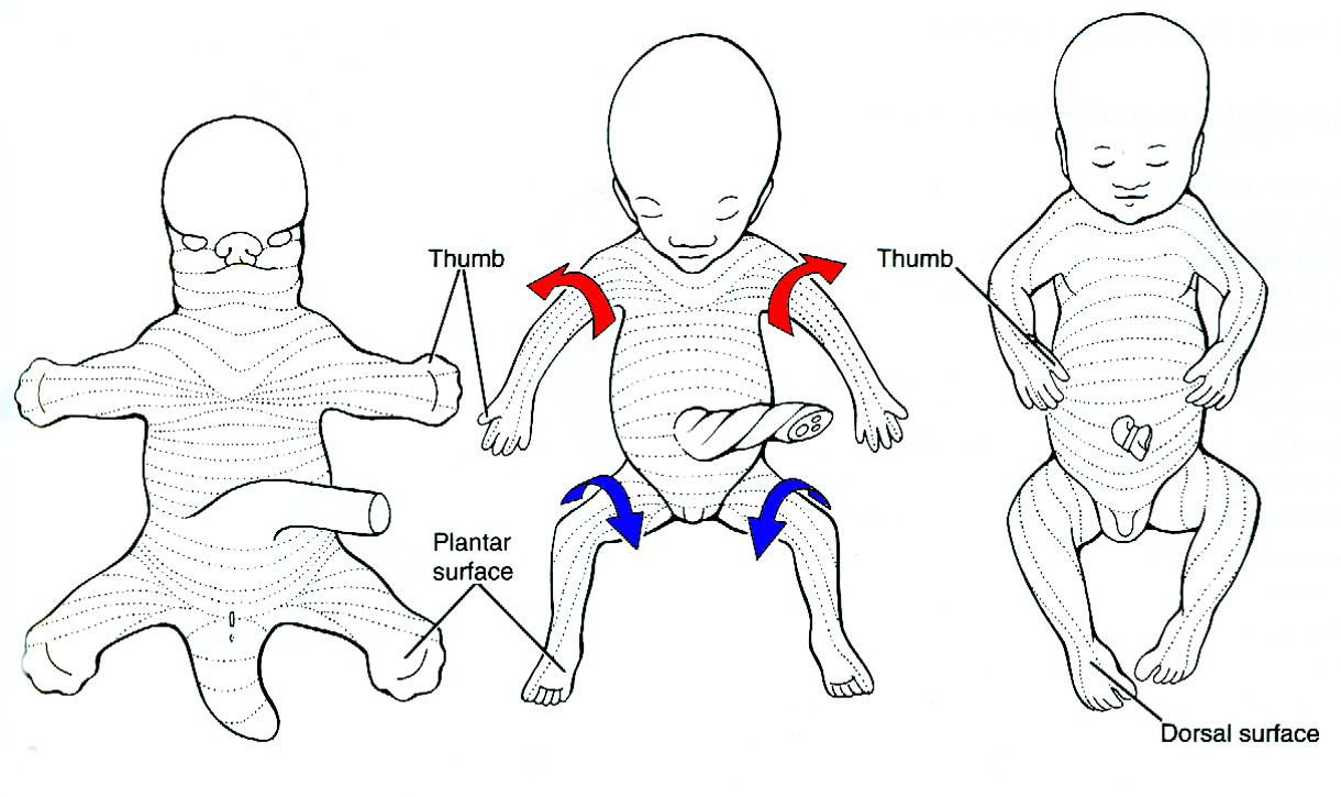 lateral and medial rotation of limb buds