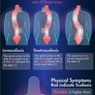 Scoliosis & Chiropractic Treatment