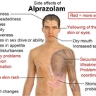 Alprazolam Is One Of The Most Common Drugs Used To Induce Sleep