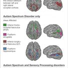 Kids with Autism and Sensory Processing Disorders Show Brain Wiring Differences