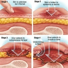 All about Pressure Ulcers