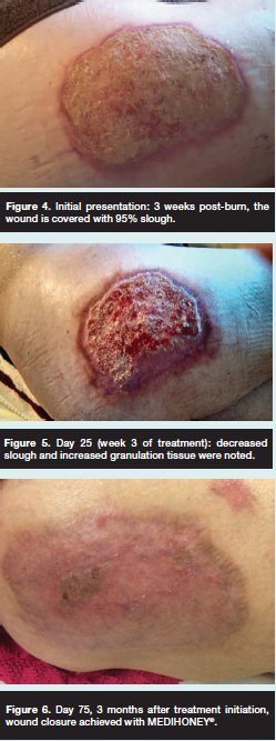 Post burn, wound is covered with slough. Decreased slough and increased granulation.