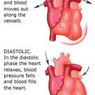 Meaning of Systolic and Diastolic