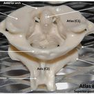 Atlas C1 and Axis C2 vertebrae, superior view with labels - Axial Skeleton Visual Atlas, page 48
