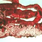 Taeniasis is acquired by humans through the inadvertent ingestion of tapeworm larvae (cysticerci) in
