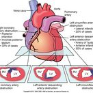 Distribution of infarction - myocardium