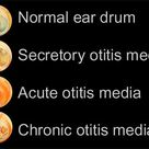 What Otitis Media looks like as infographic.