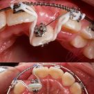 Non-extraction treatment with conventional bracket system and ocs.