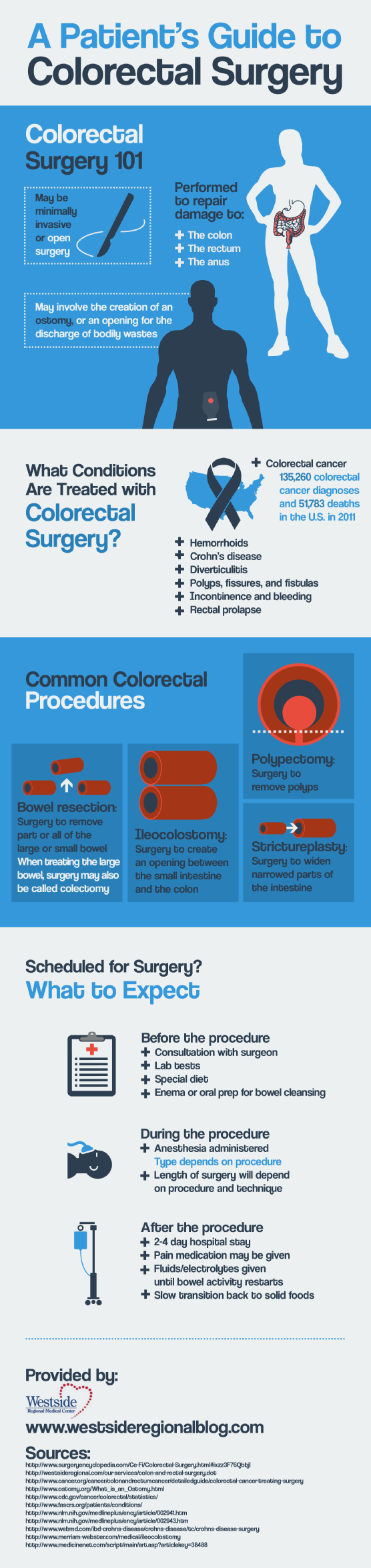 Colorectal Cancer Infographics