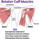 Rotator Cuff Impingement and Tear Supraspinatus