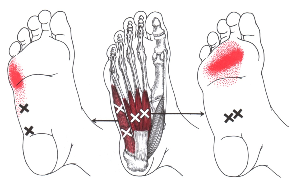 Abductor Digiti Minimi (Foot) | The Trigger Point & Referred Pain Guide