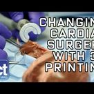Changing Cardiac Healthcare with 3D Printing