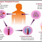 Bone marrow transplantation is a critical procedure and is followed through only when the patient is
