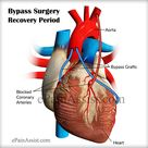Bypass surgery recovery period depends on individual's prior health condition and age and everyone