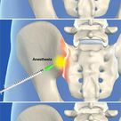 A sacroiliac joint steroid injection procedure.