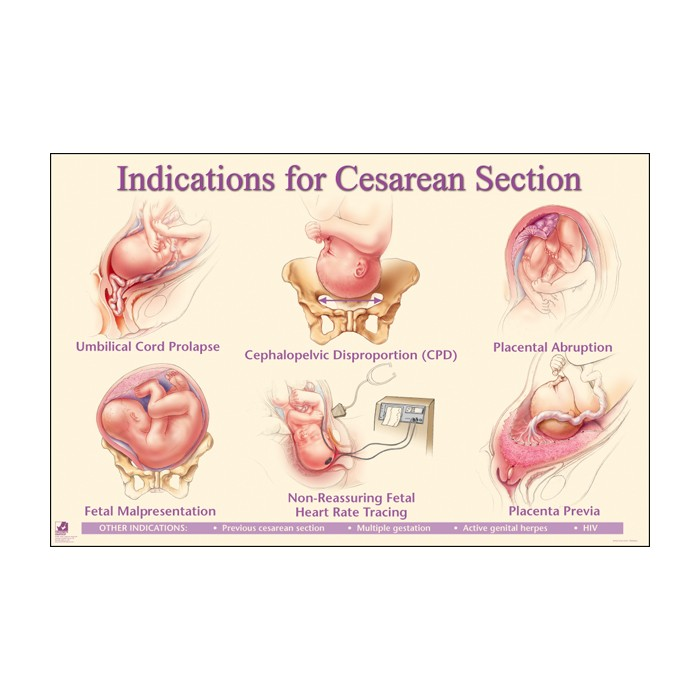Indications for Cesarean Section Chart