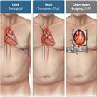 Transcatheter Aortic Valve Replacement (TAVR) : Aortic Valve Replacement Option