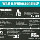 What is Hydrocephalus?