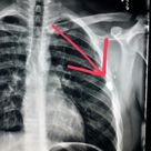 Chest xray shows a bullet that never entered the lung; it's just in the skin.