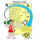 Left & Right CVA o Right: § Right side of the brain effects the Left side of the body · Paralyze
