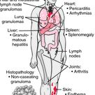 Sarcoidosis.  Apparently an autoimmune disorder that affects multiple organ systems.  Its affects co