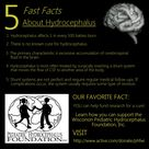 5 Facts About Hydrocephalus.