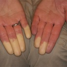 Raynaud's phenomenon occurs when the blood vessels that feed your fingers and toes constrict in reac