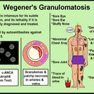 Wegeners granulomatosis. This was my mother's diagnosis at age 83. It may have been present & un