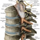 Conceptualized exposure of spinal cord in the thoracic vertebrae