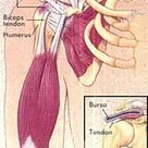 Shoulder Tendinitis, Bursitis, and Impingement