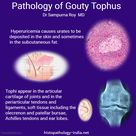 Pathology of Gouty Tophus