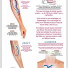 Hemodialysis Grafts- Vein and Arterial Assessment Before Hemodialysis Access Placement