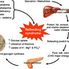 A description of refeeding syndromes, who is at risk and what to do about it.