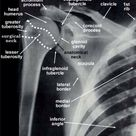 AP of the glenohumeral joint