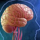 Preventing Strokes Through Community Education | WebMD