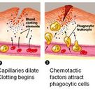 Steps in the process of inflammation